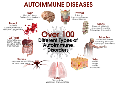 Essential Oils (EOs) for Autoimmune Disorders